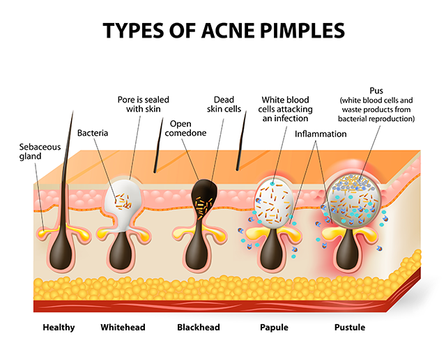 how to remove acne/pimples fast at home